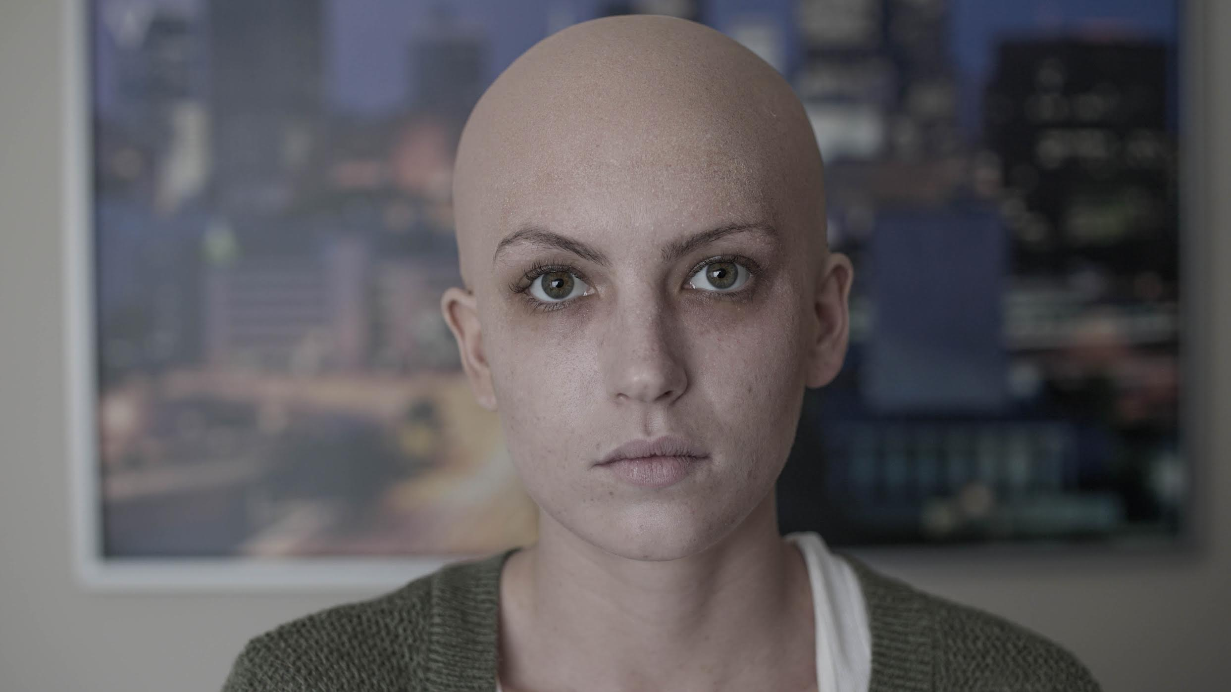 Cancer patient with bald cap