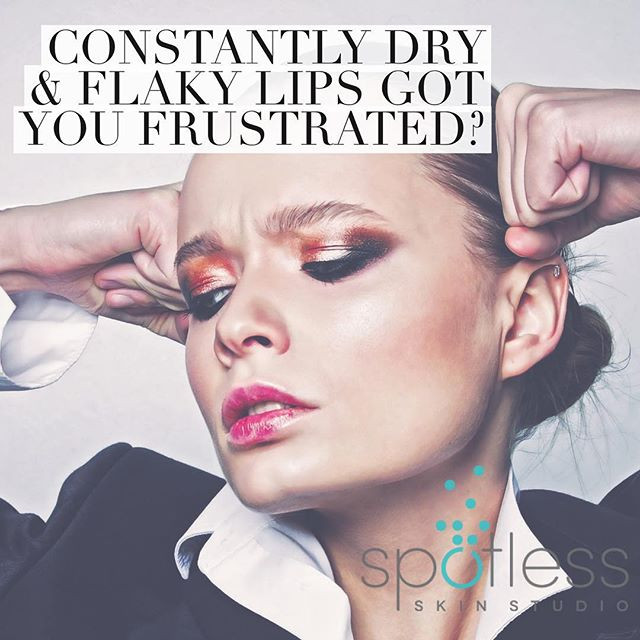 Constantly dry and flaky lips got you frustrated?