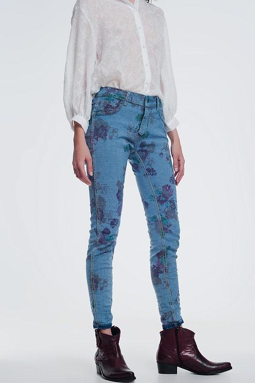 Reversible Wrinkled Denim Skinny Jeans