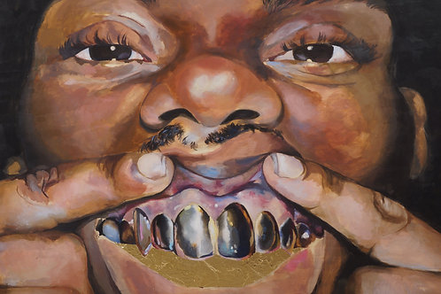 GoldTeeth Print