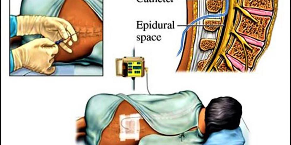 EPIDURÁLKA - všetko o epidurálnej a spinálnej anestézii (1)