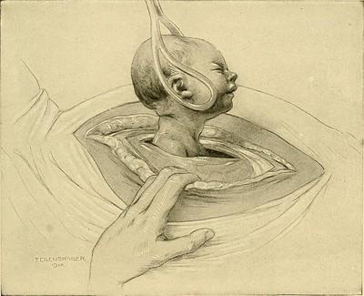 Extracción de bebé con espátulas en una cesárea