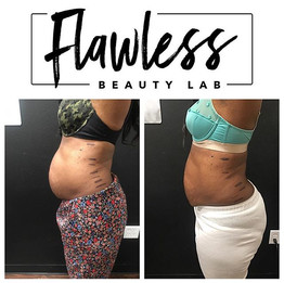 After only 2 Sessions of Flawless Body S