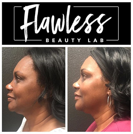 Book a Flawless Face Lift to achieve a f