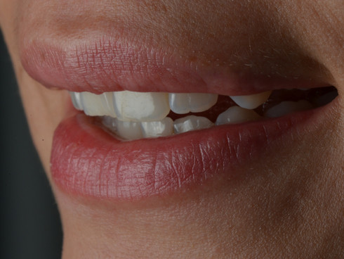 diseño de sonrisa atelier dental