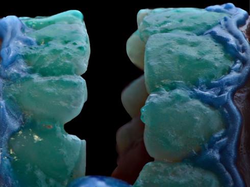 atelier dental blanqueamiento.JPEG