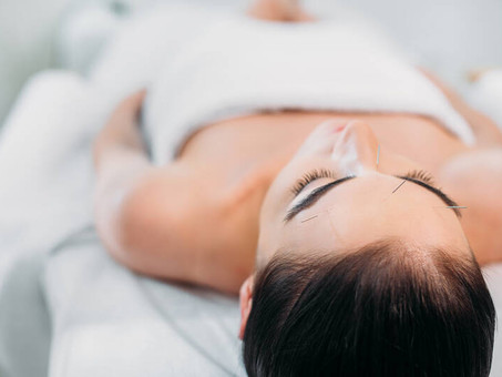 Can Acupuncture Help Relieve Headaches?