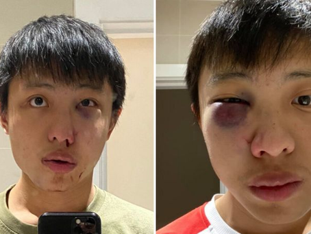 Mahasiswa Singapura Diserang Secara Rasial Dituduh Membawa Virus Corona