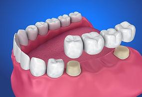 Dental-crown-and-Bridge-768x476.jpg