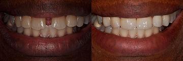 cosmetic-dental-makeover-San-Francisco-3