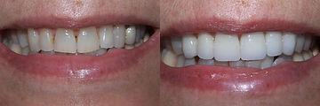 cosmetic-dental-makeover-San-Francisco-4
