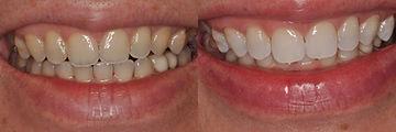 San-Francisco-teeth-whitening-2.jpg
