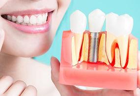 Dental-Implant-Care-750x750.jpg