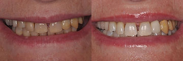 San-Francisco-teeth-whitening-5.jpg