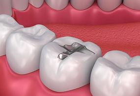 dental-fillings-825x550.jpg