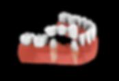 pingree-dental-crown-and-bridges.png
