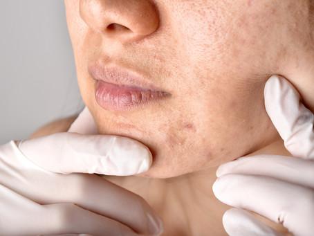 Wie man Aknenarben behandelt