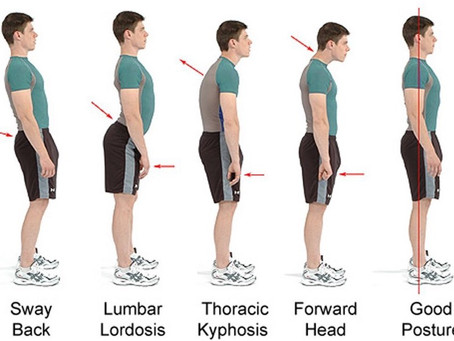 Stand Up Straight: The Importance of Massage Therapy for Proper Posture