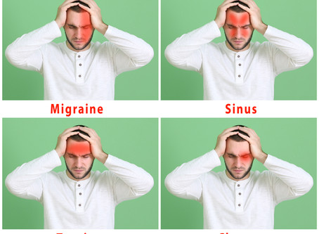 Headaches - common causes and how acupuncture can help