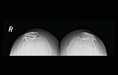 PF knees.jpg