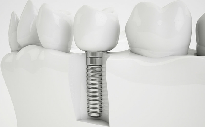 Dental Implant Health