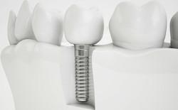 Dental Implant Health