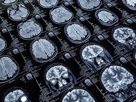 Neuronii oglindă & comportamentul social