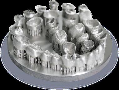 3D printed bridge and crowns