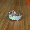 3D печать в стоматологии 24001500.JPG