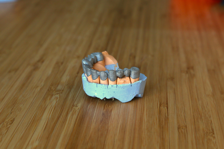3D печать SLM в стоматологии