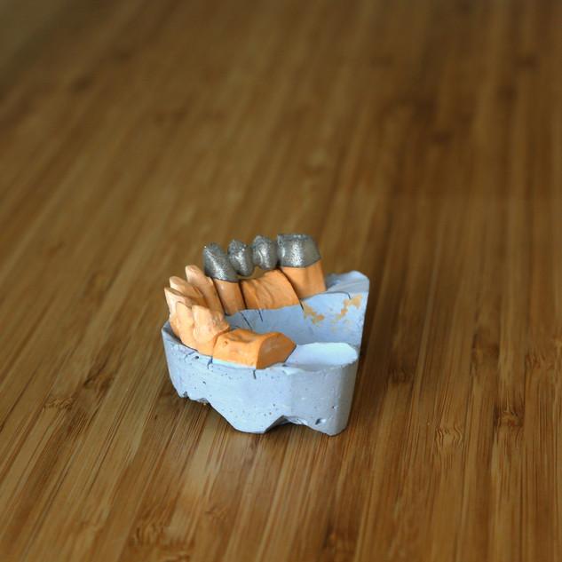3D принтер стоматологический 24001500.JP