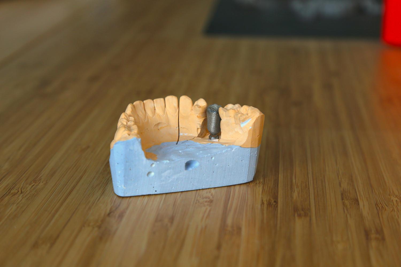 Каркасы Co-Cr cелективное лазерное плавление (SLM) на своих зубах