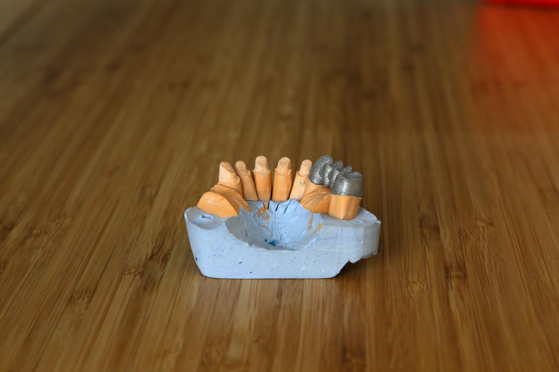 3д печать зуботехническая лаборатория 24