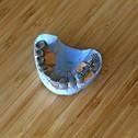 3d печать изделий для стоматологии 24001