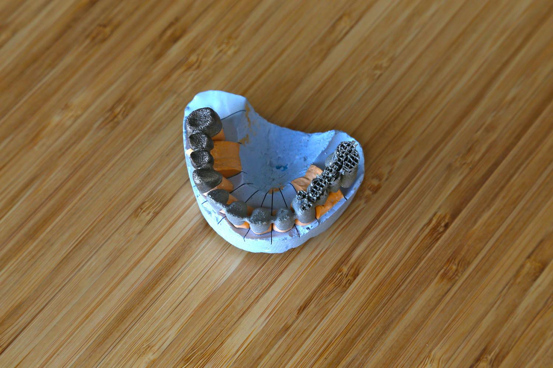 3D печать каркасов мостовидных и бюгельных протезов