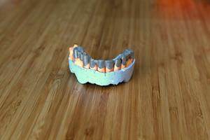 3d печать металлом в стоматологии 240015