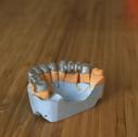 3d печать стоматологическая 24001500.JPG