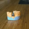 3d печать мостов стоматология 24001500.J