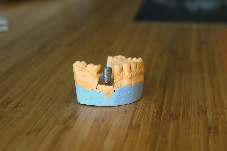 3D печать каркасов мостовидных и бюгельных протезов, колпачков и коронок