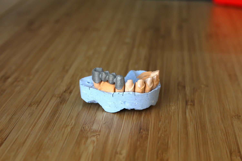 Применение 3д принтеров по металлу в зуботехнических лабораториях