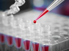 Blut & Blutstammzellen