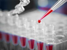 Відновлено виробництво ІФА тест-систем для оцінки гострих станів DIA®-CRP та DIA®-D-dimer