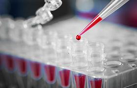 בדיקת דם בלוטת התריס