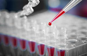 biochemický rozbor krve na analýzu hubnutí