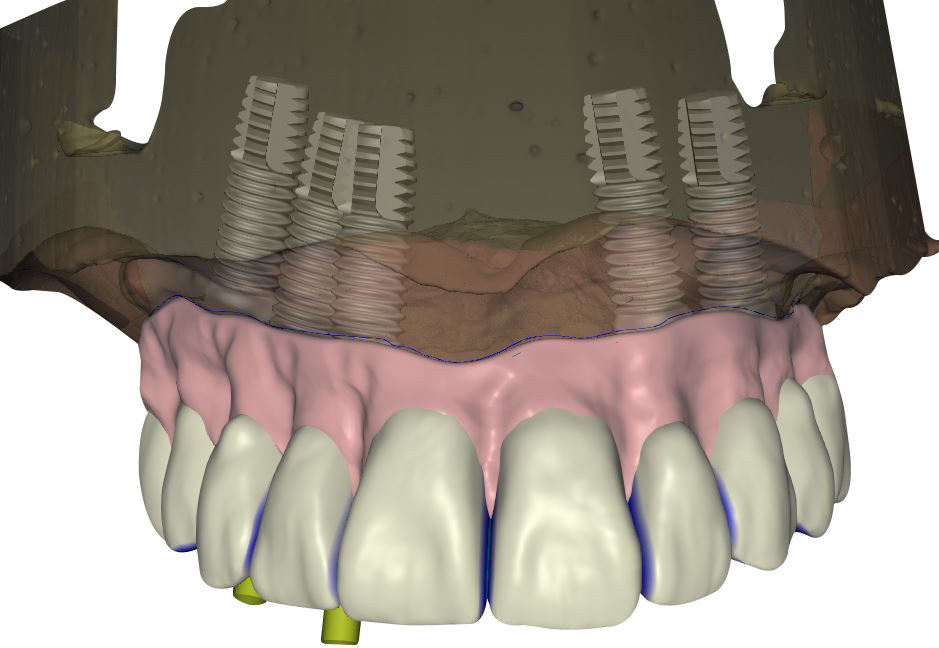 CAD_implant_AP