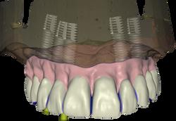 CAD_implant_AP