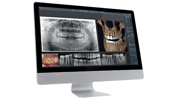 Cone Beam Computer Tomography CBCT