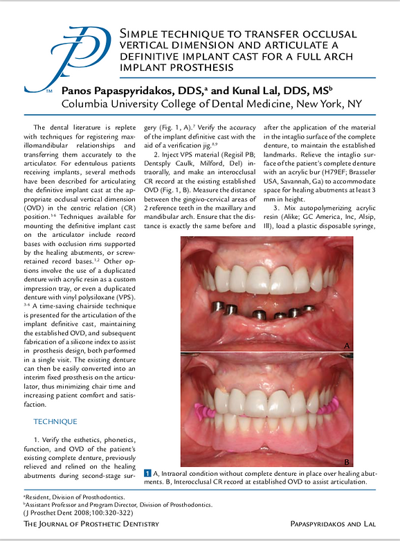 Journal of Prosthetic Dentistry Technique to Transfer Occlusal Dimension Article