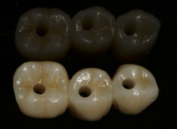 Occlusal Surface