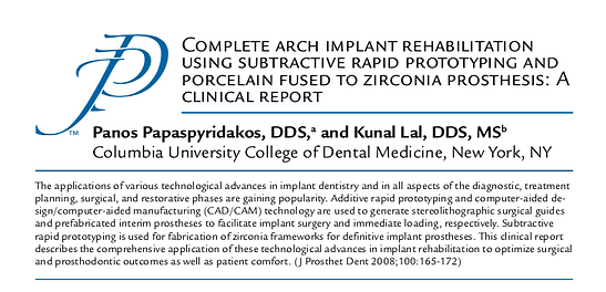 Journal of Prosthetic Dentistry Complete Arch Implant Rehabilitation Clinical Report